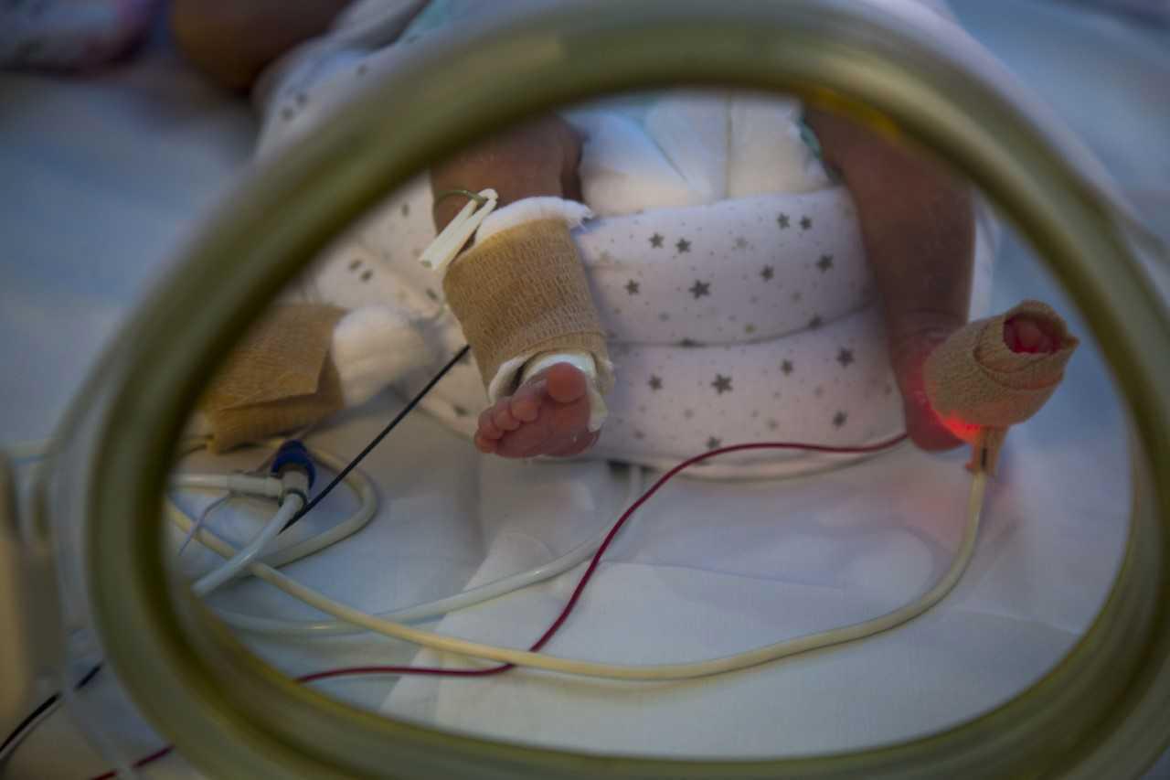 Prematurez: el 9% de los niños que nacen anualmente en Uruguay lo hacen antes de las 37 semanas de gestación.