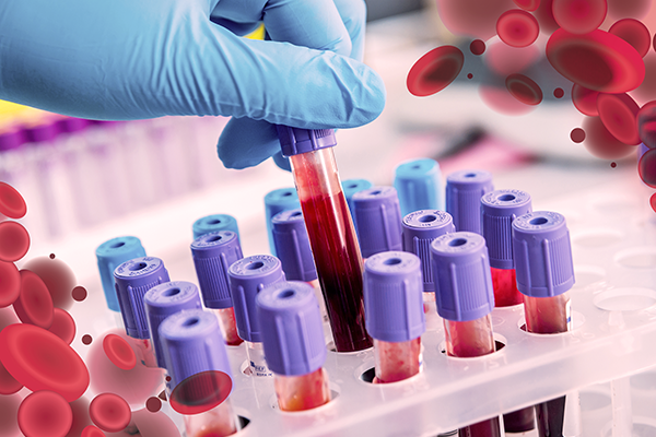 Resultado de imagen para hematologia